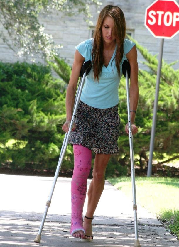 How To Care For Your Broken Leg Or Broken Arm Fiberglass Cast