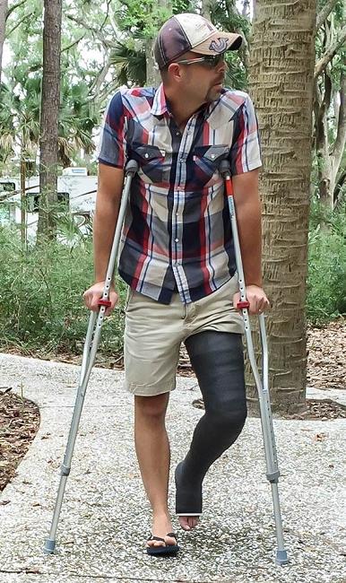 Orthopedic Casting Supplies Long Leg Cast Orthotape