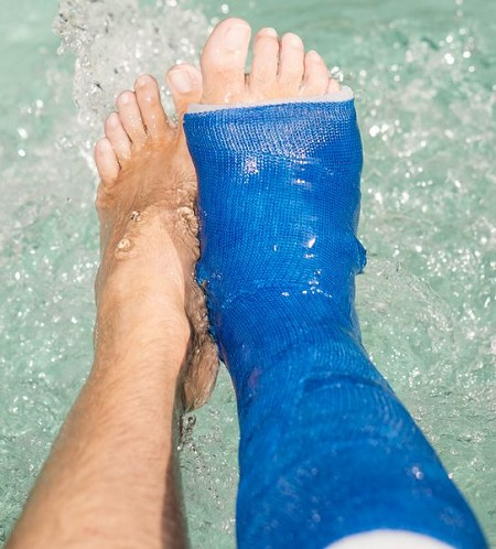 Waterproof foot cast - Waterproof Cast Cover for Swimming