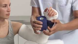 How to Apply a Fiberglass Orthopedic Cast