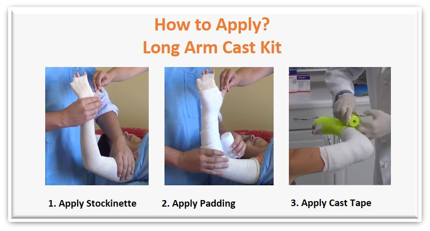 application of a long arm cast