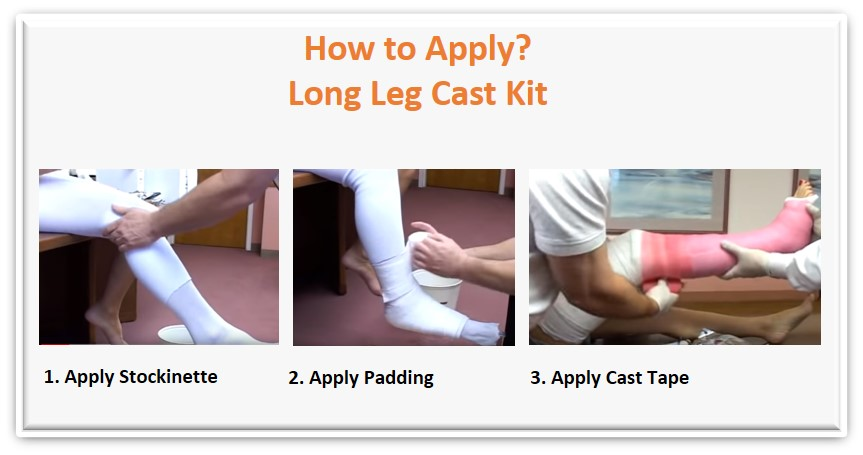 how to apply long leg cast