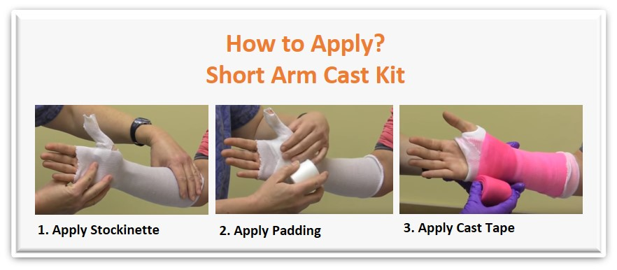 How to apply short arm cast