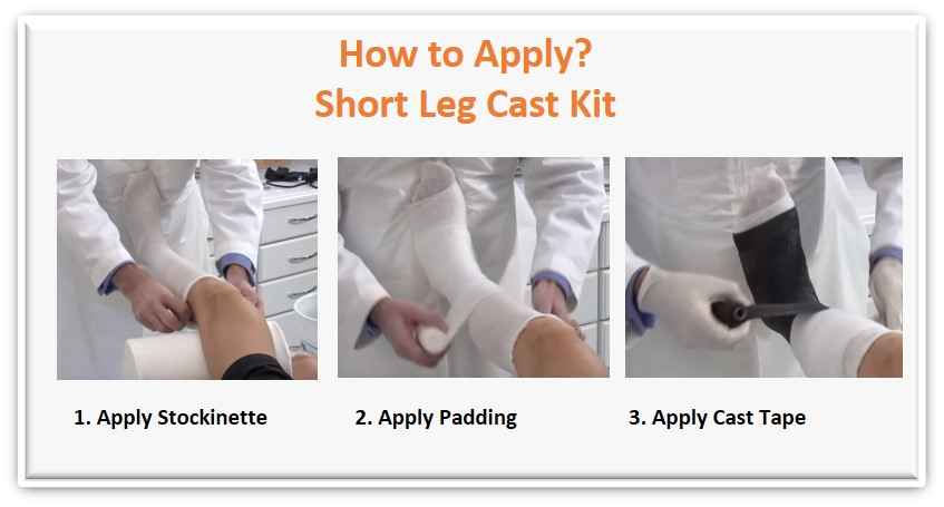 application apply short leg cast