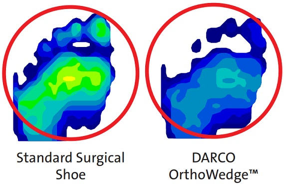 Darco Orthowedge Difference