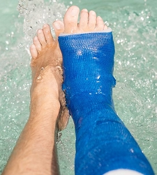 Summer is saved with Delta Dry Waterproof Cast Padding