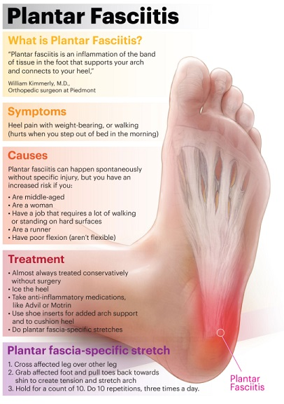 What is Plantar Fasciitis-sm
