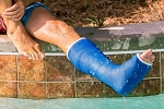 OrthoTape Neal Water Resistant Short Leg Cast Kit